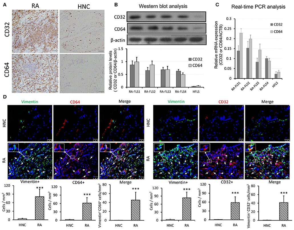 医学中心研究团队发现C反应蛋白在类风湿性关节炎中致病新机制(图1)