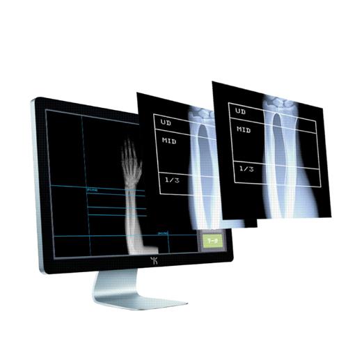 康源多能X射线骨密度检测系统系统