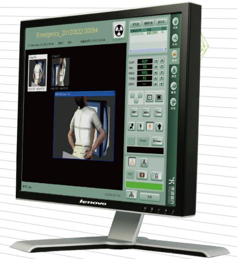数字X-射线影象工作站软件