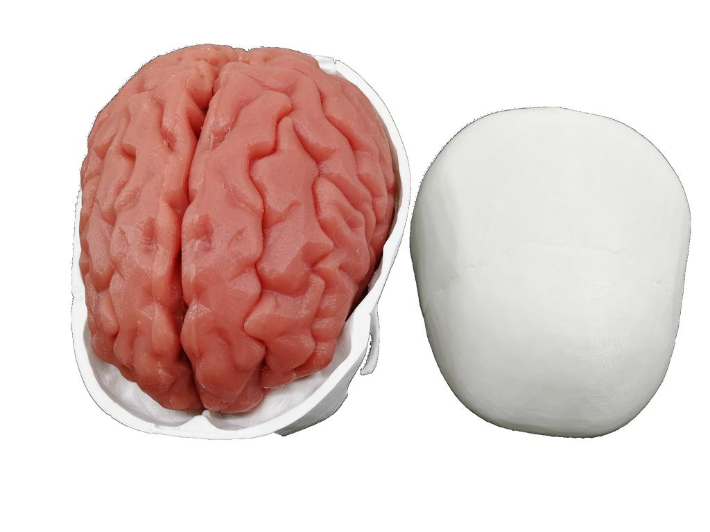 颅脑血肿清除训练模型