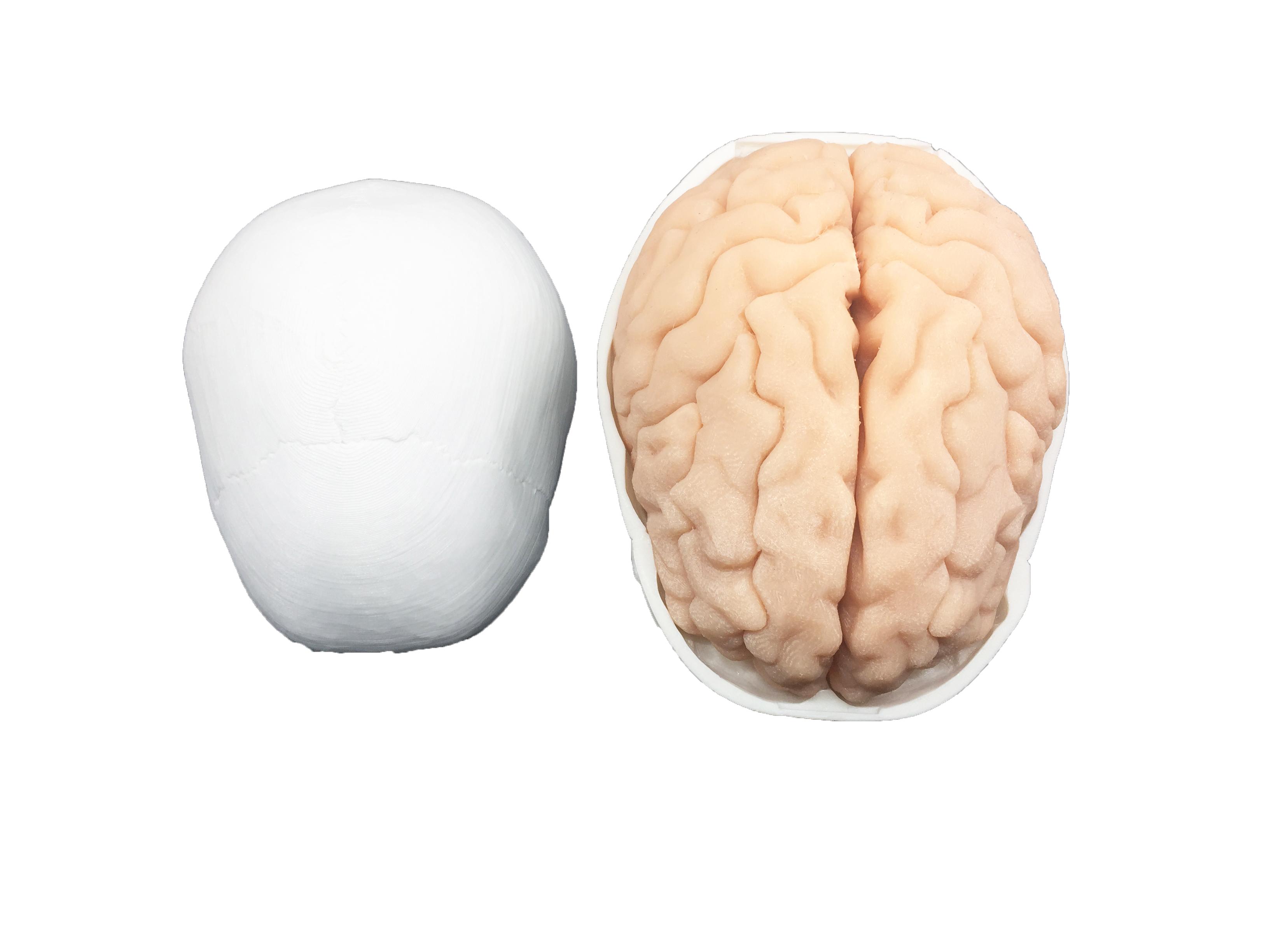 侧脑室穿刺引流模型