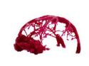 脑血管瘤定制模型