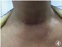 甲状腺手术(佳修线4-0)