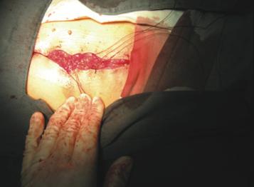 剖腹产手术(佳修线2-0)