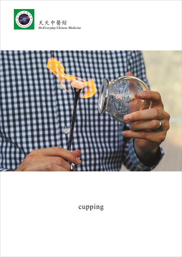 Picture of Cupping 火罐